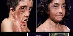 A burn victim gets facial reconstruction.