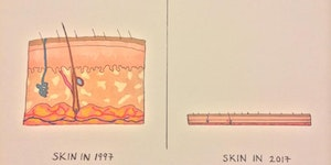Skin, then and now.