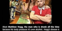 Matthew Hogg the guy who is always drunk due to auto-brewer syndrome