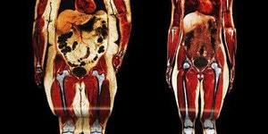 Body scans. Fat vs Fit.