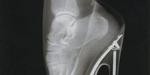 This is why high heels hurt your feet.